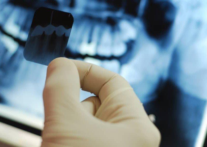 Digitalno-slikanje-zuba